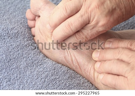 A senior man checks the dry, flaking skin of athletes foot on his sole. - stock photo