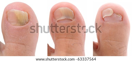 A sequence of a toe nail suffering from fungus infection - a series of FUNGI NAIL images. - stock photo