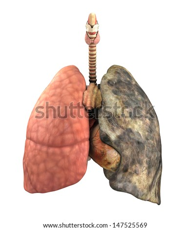 A set of lungs, before and after a lifetime of smoking - 3d render. - stock photo
