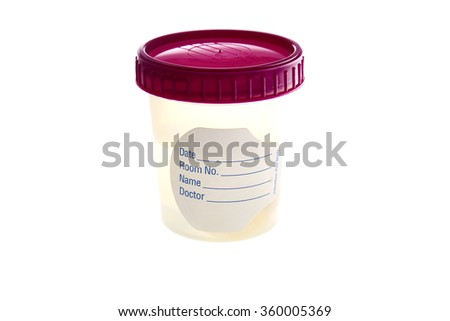 A specimen Cup with a blank label filled with liquid isolated on white with room for your text. Specimen cups are used around the world by doctors and medical professionals. - stock photo