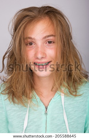 A teenager with messy hair and braces