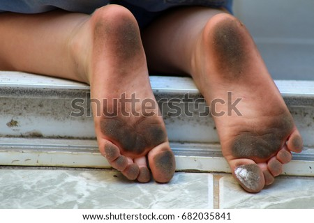 how to clean stinky toddler feet