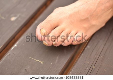 A toenail fungus at the peak of the infection. - stock photo