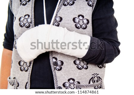 a woman with a broken arm isolated on white background - stock photo