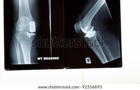 A x-ray of a partial  knee replacement - stock photo