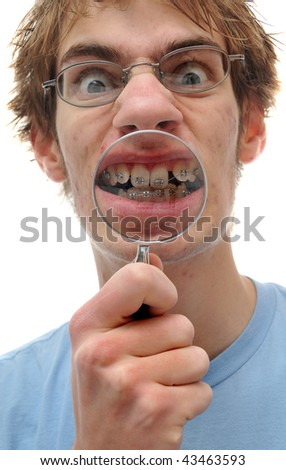 A young adult holds a magnifying glass up to his crooked teeth with braces on. - stock photo