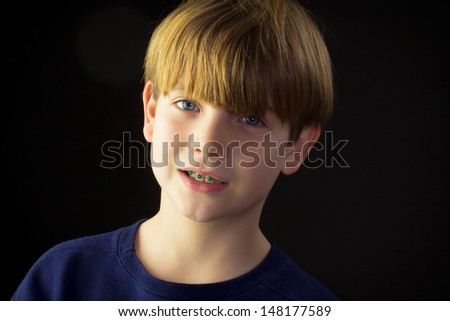 A young boy reveals his new green braces - stock photo