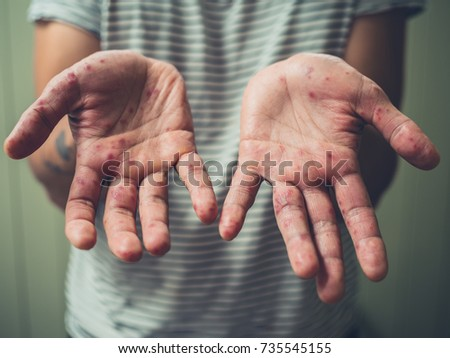 A young man is showing his hands with spots and rash from hand foot and mouth disease