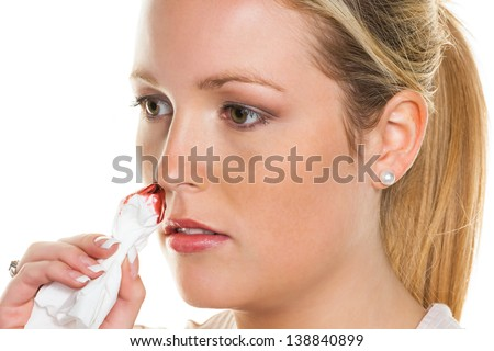 a young woman bleeding from her nose. stops bleeding noses with a handkerchief.
