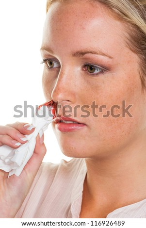 a young woman is bleeding from her nose. stop nosebleeds with a handkerchief