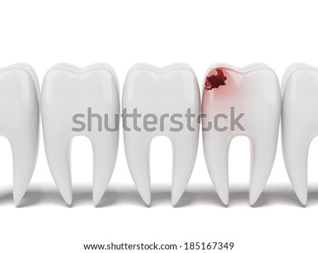Aching tooth in row of healthy teeth - stock photo