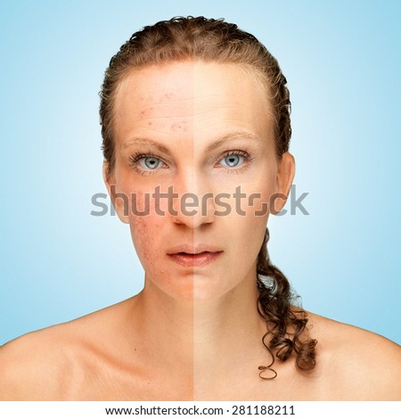 Acne /  Photo retouch before and after, skin problem - stock photo