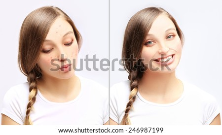 Acne.Portrait of teenage girl  with problem and clear skin - stock photo
