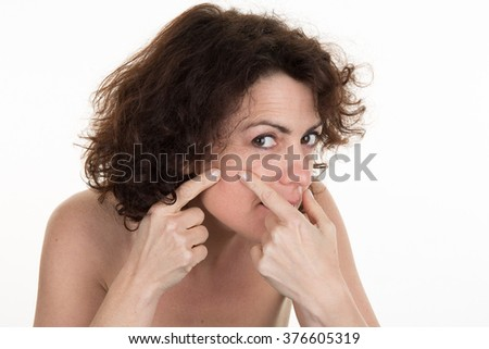 Acne spot pimple spot skincare beauty care girl pressing on skin problem face.  - stock photo
