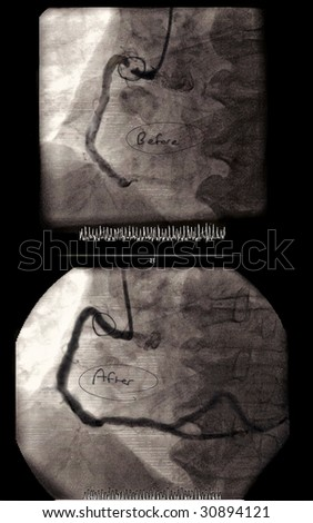 Actual angioplasty images with doctor's notes taken before and after surgical procedure. - stock photo