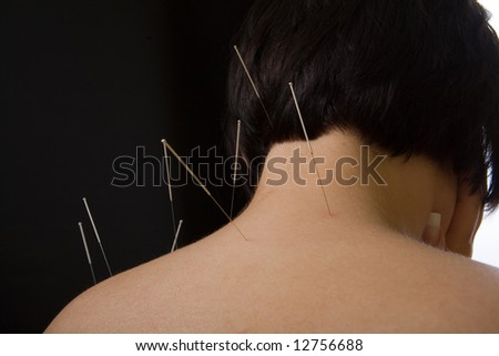 Acupuncture, alternative medicine, needles on back of a woman - stock photo