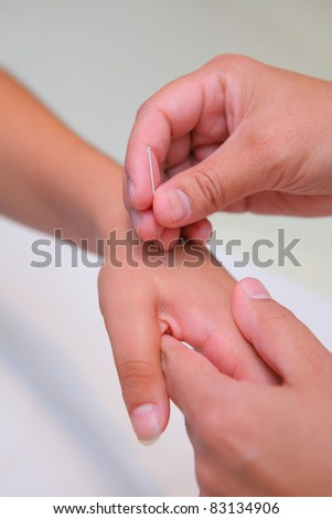 acupuncture - asian treatment inserting a needle into woman hand - stock photo