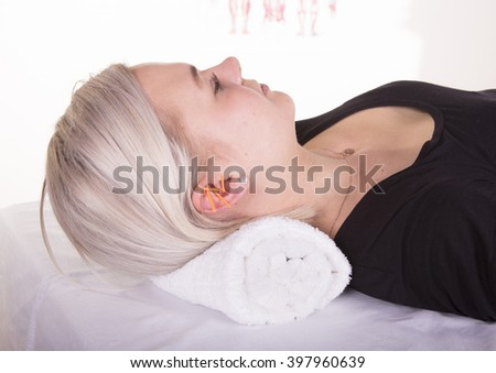 Acupuncture in ear - stock photo