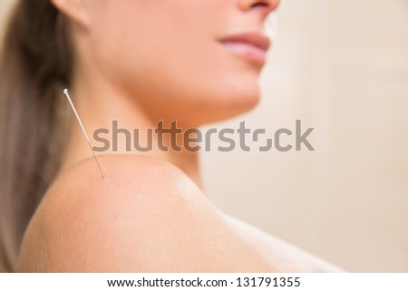 Acupuncture needle pricking on woman shoulder therapy closeup - stock photo