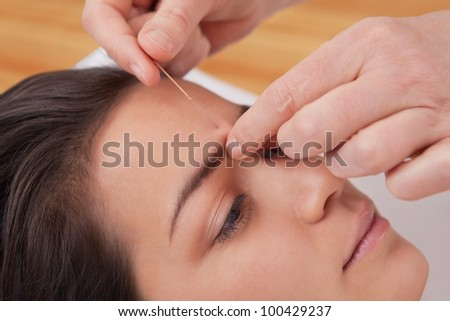 Acupuncture needles on head of a young woman at the spa tcm