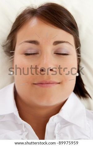 Acupuncture patient undergoing a facial beauty treatment - stock photo