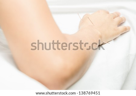 Acupuncture patient with needles along arm, Carpal tunnel syndrome treatment, Metacarpal - stock photo