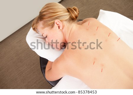 Acupuncture patient with needles along Back Shu points, showing good signs of redness - stock photo