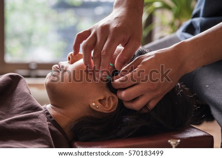 The Science Behind Acupuncture… And It's Related to ...