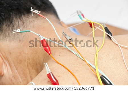 acupuncture treatment - stock photo