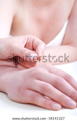Acupunctured hand on the white background - stock photo