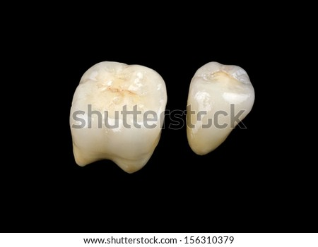 Aesthetic ceramic crowns isolated on black background