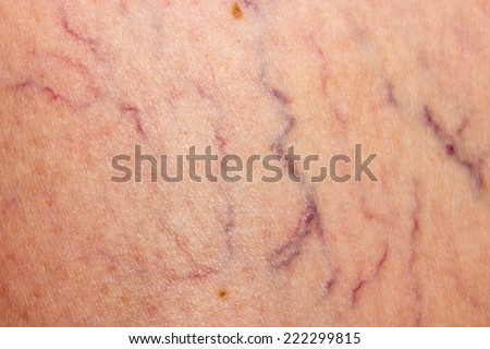 Affected by varicose veins - stock photo