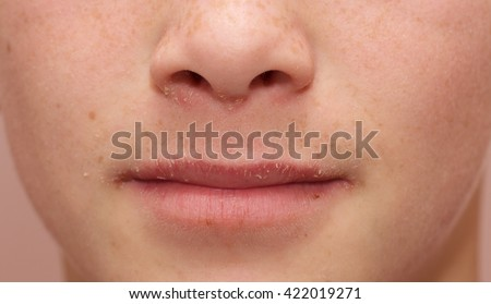 Allergic Boy. A teenage boy with severe allergies has eczema, nasal congestion and dry lips secondary to chronic mouth breathing. - stock photo