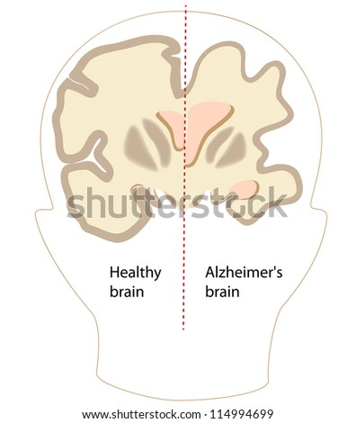 Alzheimer's disease brain compared to normal - stock photo
