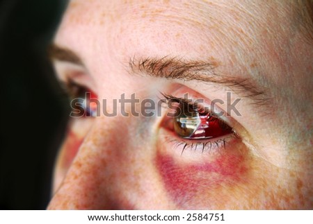 An abused woman with black and blue and bloody eyes - stock photo