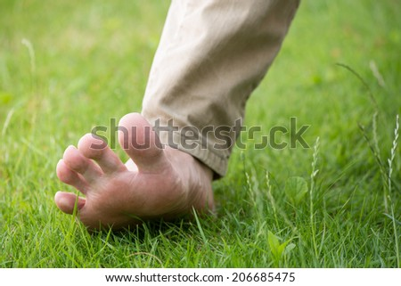 An advanced flatfoot - medical condition - stock photo