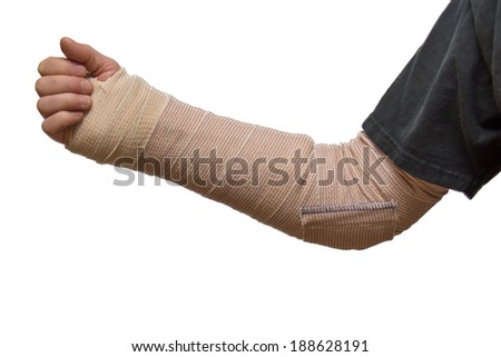 An arm splint from wrist to elbow - stock photo