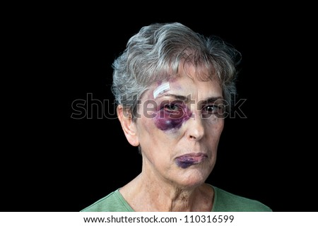 An elderly grandmother badly beaten with stitches, a black eye and a fat lip. - stock photo