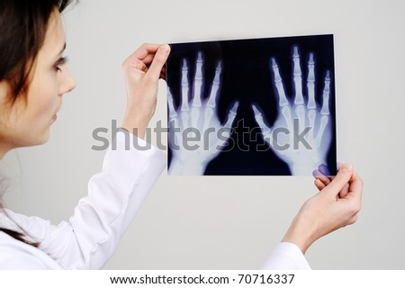 An image of a doctor examing x-ray