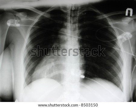 an xray of a chest, ribs and abdomen