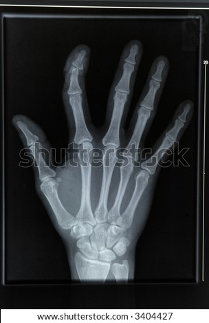 an xray of a hand with broken finger