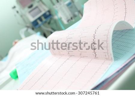 Analyzing patient's ECG in ICU ward - stock photo