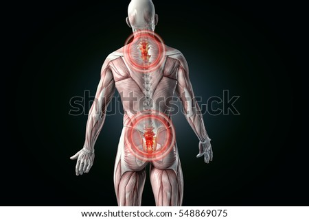 anatomical vision back pain. 3D illustration.