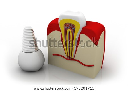 Anatomy of healthy teeth and dental implant in jaw bone - stock photo