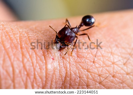 angry ant biting human skin  - stock photo
