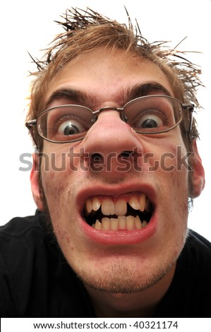 Angry ugly man with crooked teeth and glasses isolated on white - stock photo