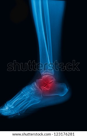 ankle and foot x-rays image lateral