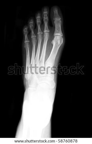 Anterior posterior xray of foot - stock photo