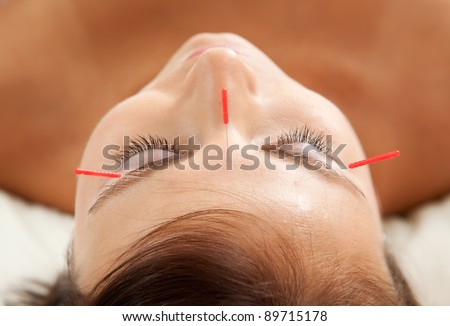 Anti-aging acupuncture treatment on young attractive female patient - stock photo