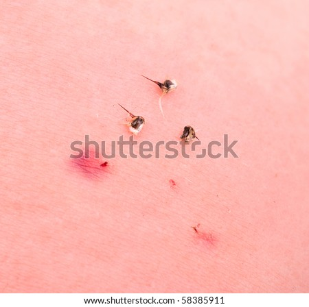 Apitherapy: treatment with a honeybee poison injection - stock photo